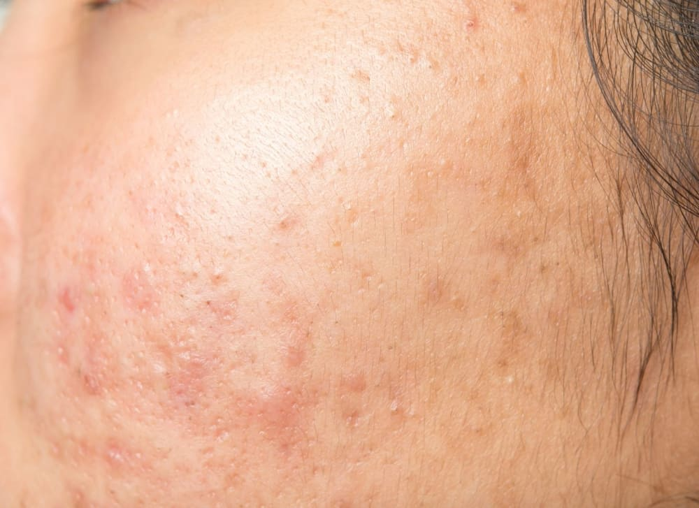 What is Skin Purging & How to Tell If Your Skin Is Purging or Breaking Out?