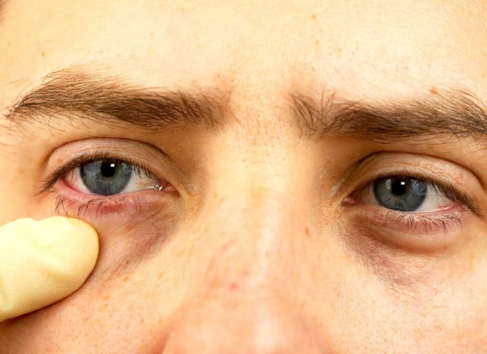 Sunken Eyes: Causes, Pictures, and How to Get Rid of Them