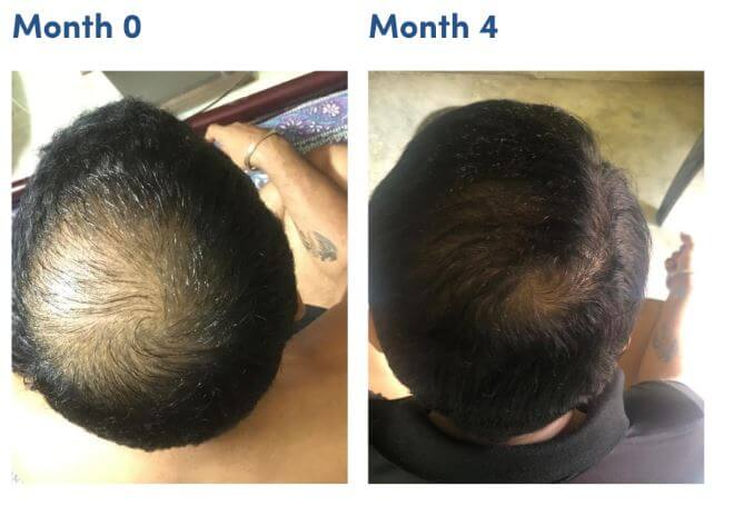 minoxidil pictures before and after man matters