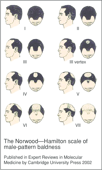stages of male pattern balding on the norwood hamilton scale