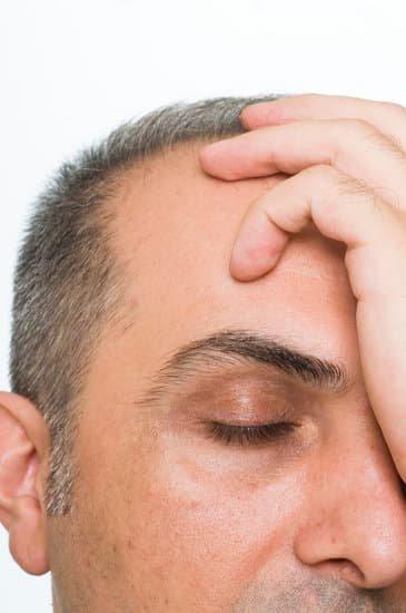How do I figure how severe my balding is?