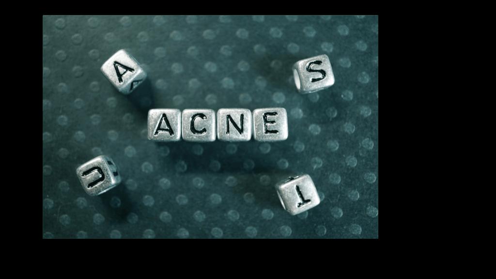 Can dandruff cause acne?