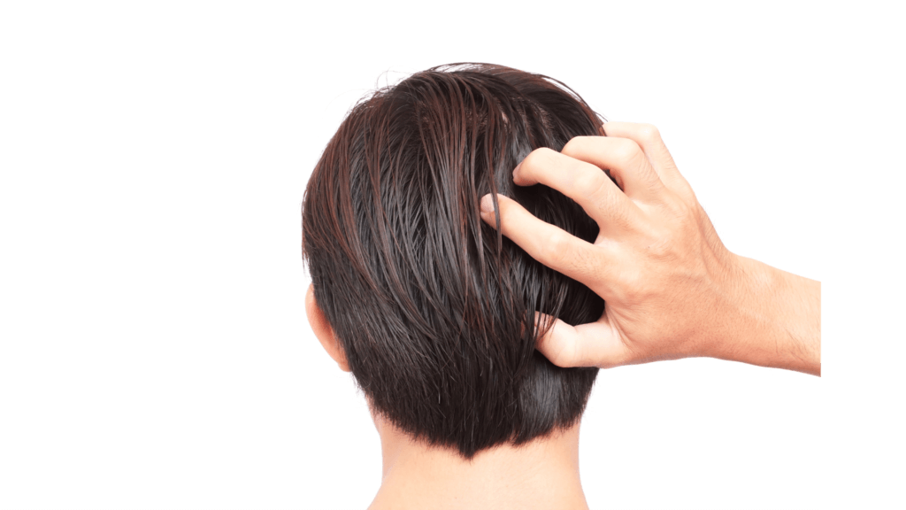 How to get rid of an oily, itchy and dandruff filled scalp?
