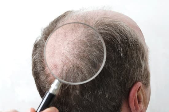 Consider hair transplants if you are balding