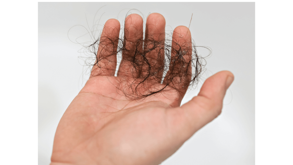 How are stress and hair loss related?