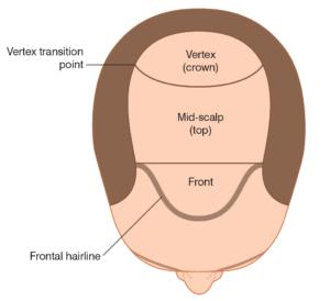 Regions of the scalp
