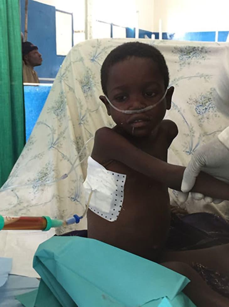 Miriam (5) hadde tuberkulose.