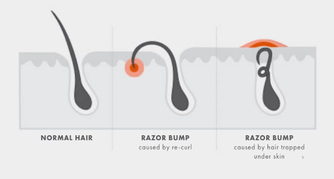 Tips for minimising razor bumps while shaving: