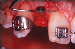 The maxillary lateral incisor implant