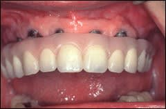 Image: open mouth with a maxillary fixed complete denture where the metal framework is visible thorugh through the prosthesis during the wax trail placement appointment
