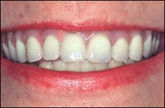 Image: smiling face with discoloration of the overlying pink denture base resin, after the resin has been processed.
