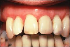 Image: central incisor crown that appears tilted in the arch.