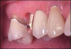 The maxillary second premolar implant