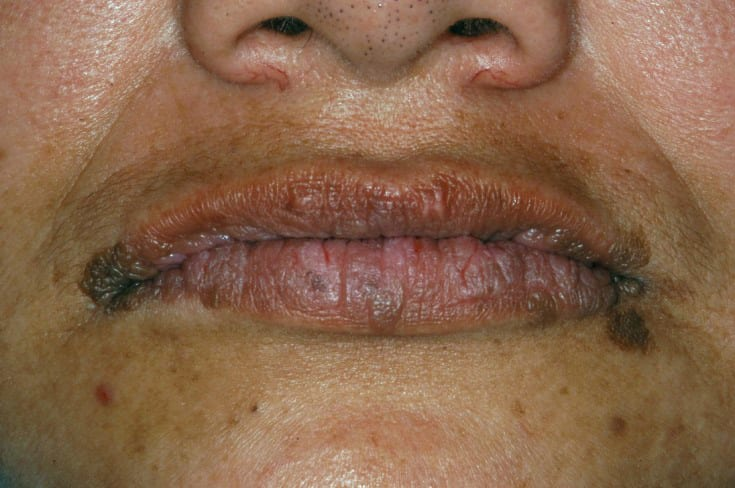 Multiple sessile, focally pigmented, papulonodular lesions on labial vermilion border and perioral skin.