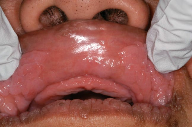 "Multiple sessile, confluent, ""cobblestone"" nodules present on the upper and lower labial mucosa."