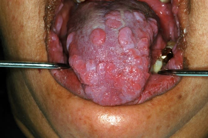 Multiple nodules on dorsal tongue surface.