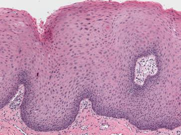 Low power histologic image showing epithelial hyperplasia with increased cellularity and hyperparakeratosis.