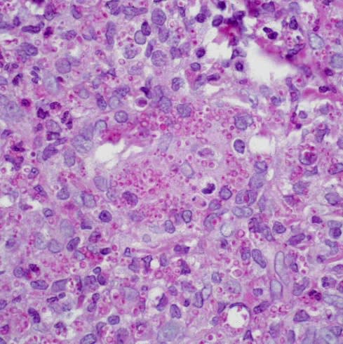Photo of high power histologic image showing acute and chronically inflamed granulation tissue with numerous histiocytes containing small 6-8 µ intracytoplasmic circular organisms.
