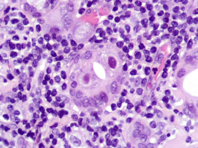 Photo of high power histologic image showing chronically inflamed salivary gland tissue. The salivary ductal epithelial cells are enlarged and exhibit viral cytopathic changes with large bright pink inclusions and perinuclear clearing.