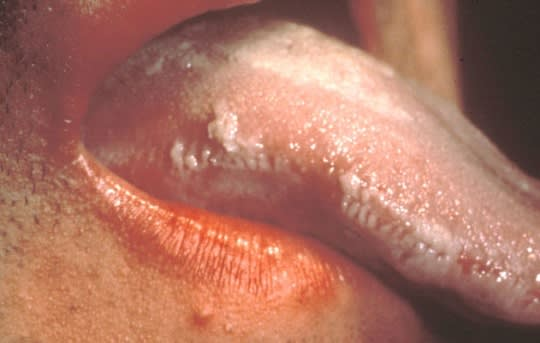 Photo showing linear leukoplakia on the right lateral border of the tongue.