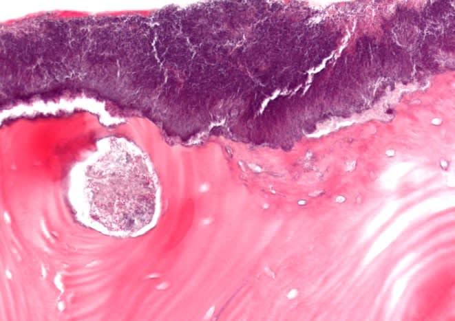 Histologic image showing a fragment of nonvital lamellar bone exhibiting empty osteocyte lacunae, ragged peripheral resorptive defects and heavy surface overgrowth of bacteria.
