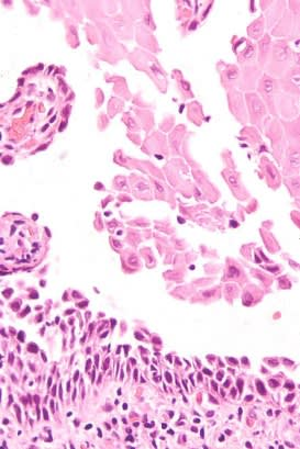 High power histologic image of a mucosal soft tissue fragment consisting of stratified squamous surface epithelium exhibiting acantholysis. Basal epithelial cells are attached to the underlying connective tissue.
