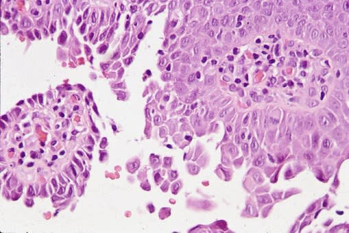 High power histologic image showing acantholysis and Tzanck cells.