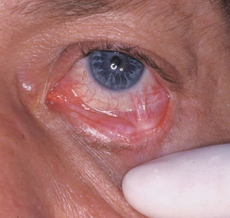Scar tissue formation (symblepharon) between the lateral palpebral and bulbar mucosa in the left eye.