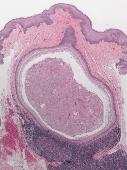 Low power histologic image showing a submucosal cyst with adjacent reactive lymphoid tissue exhibiting germinal center formation.