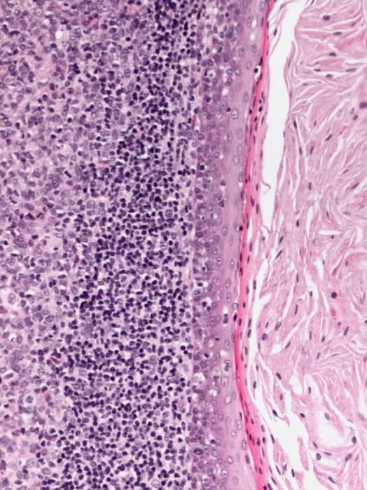 High power histologic image of cyst wall lined by thin stratified squamous epithelium with a parakeratinizing luminal surface and associated mural lymphoid infiltrate. The cyst lumen is filled with keratin.