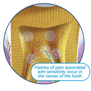 Image: Origin of pain associated with sensitive teeth.