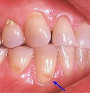 Image showing tooth abrasion.