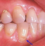 Image: Teeth showing a tooth abrasion.
