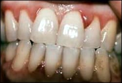 Image: Gingivitis as a result of Vitamin C deficiency.