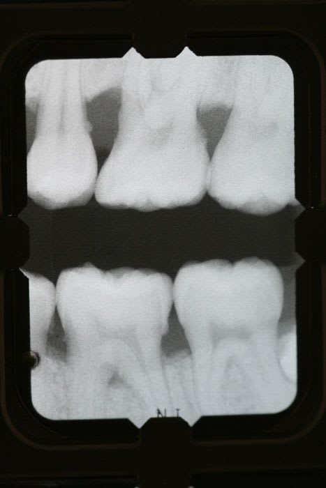 Radiographic calculus and furcation involvement