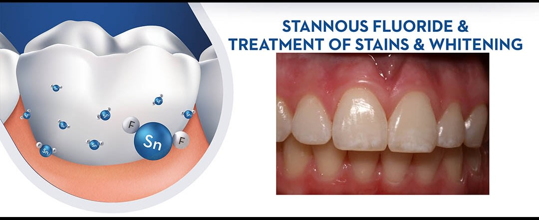 Stannous Fluoride  and Treatment of Stains and Whitening