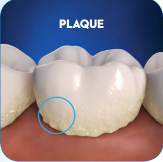 What is Plaque 6