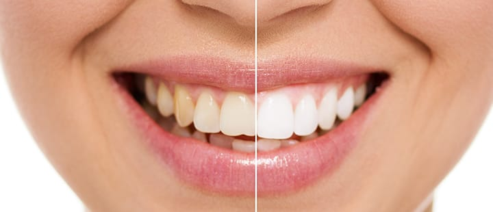 When asked by dental professionals, most Americans ask for a brighter smile
