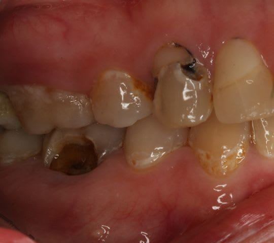 Advanced dental caries 2