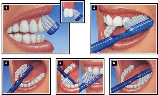 brossage des dents adaptée