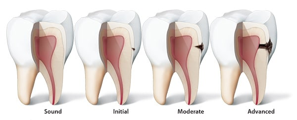 Caries and Erosion CE courses