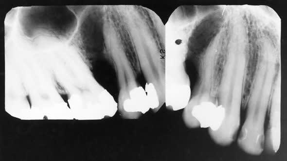 preoperative periapical radiographs