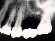 radiograph showing missing root tip