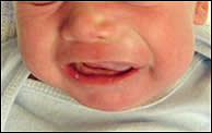 maxillary swelling in infant