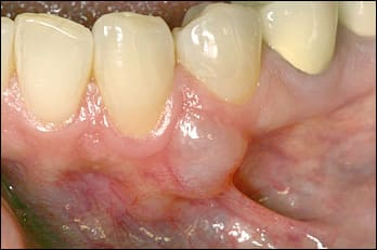 photo showing mandibular gingival nodule