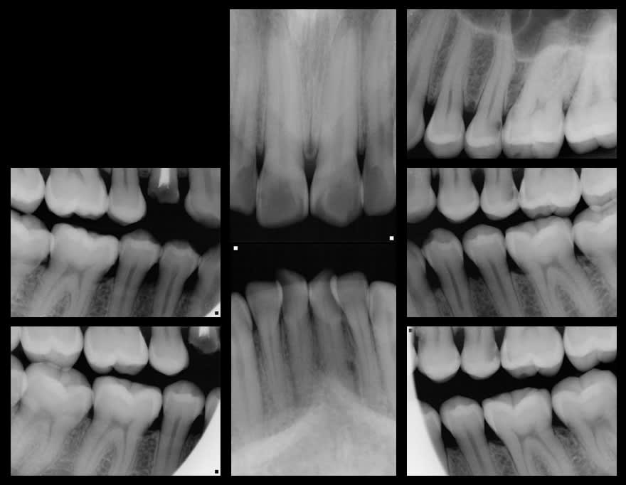 Case 32 radiographic images
