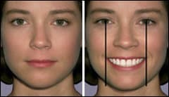 Ideal facial symmetry in the transverse dimension