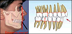 Class II Division 1 Occlusion