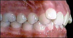 Class II Division 2 Occlusion