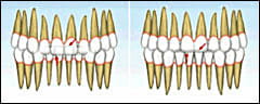 Vertical evaluation of the dentition focuses on overbite